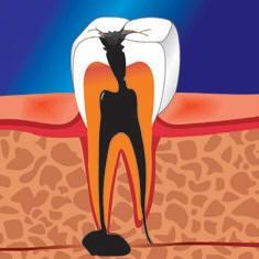 Следует ли лечить зубы перед отпуском