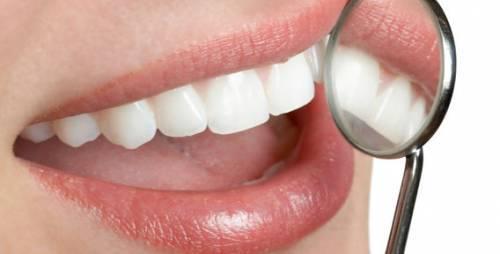 цены на имплантацию зубов