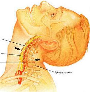 Симптомы шейного остеохондроза