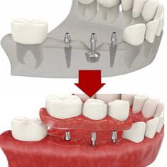 Особенности швейцарской имплантации зубов ROOTT  взгляд специалиста