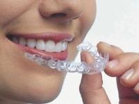 Дизайнер Вашей улыбки – врач-ортодонт!