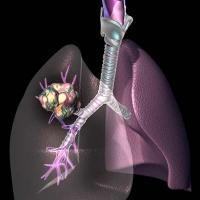 Новая технология лечения рака легких. Операция не требуется