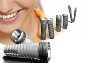 Как происходит установка зубных имплантантов