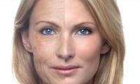 Старение кожи на лице