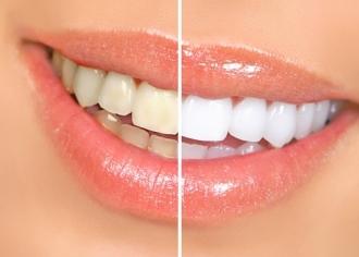 Белоснежная улыбка - залог успеха