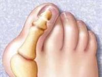 Шишки на ногах: что поможет?
